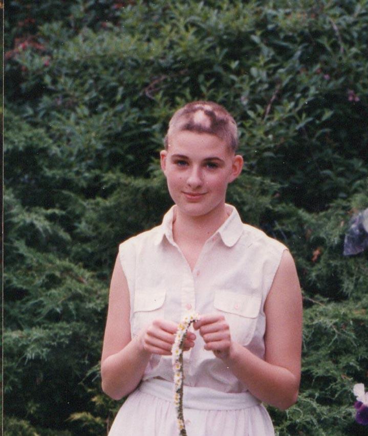 Junge Frau mit altmodischem weißem Kleid und kurz rasierten Haaren mit Alopezia-Kahlstellen
